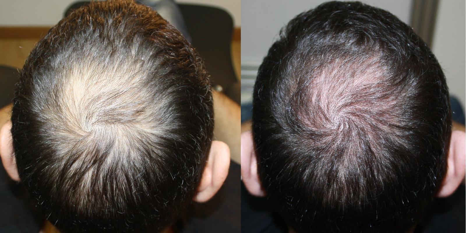 Trattamento alopecia vertex
