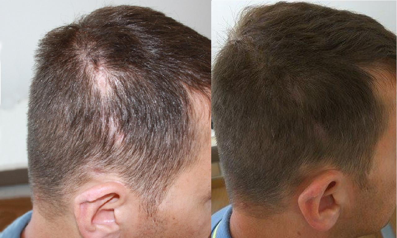 Trattamento cicatrice laterale, prima e dopo