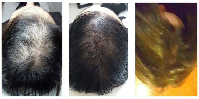 Effetto densità: prima, dopo con capelli bagnati e dopo con capelli asciutti