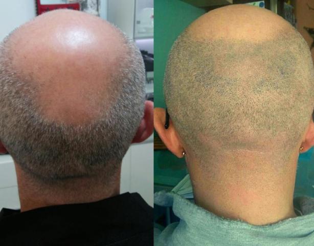 Effetto rasato, prima e dopo