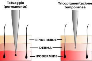 Schema tecnico tricopigmentazione