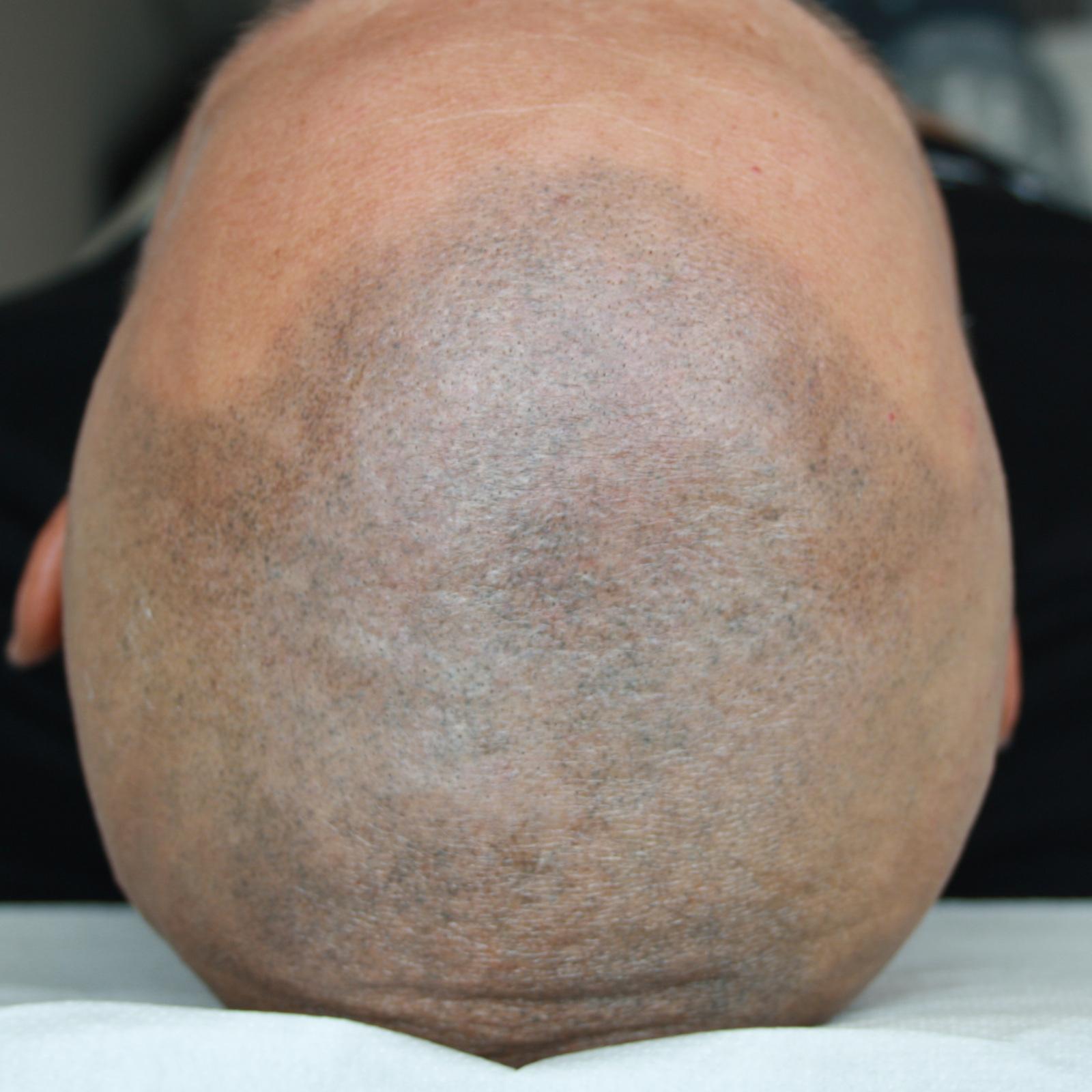 Tricopigmentazione con effetto rasato
